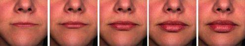 Lips with different volumes of injectable fillers