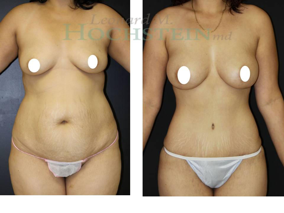 Tummy Tuck and Breast Augmentation Mommy Makeover