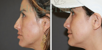 Laser Treatment Before and After Photos