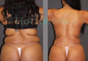 Dr. Hochstein - Liposuction