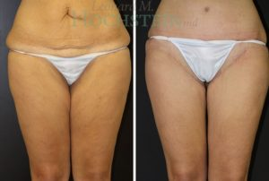 thigh-lift-02 by Dr. Hochstein