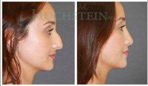 Hochstein Rhinoplasty Patient Before and After Photos