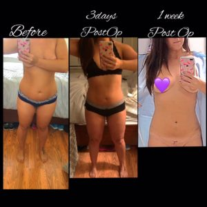 Real Patient Story Liposuction