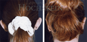 Hochstein Ear Pinning Patient Before and After Photos