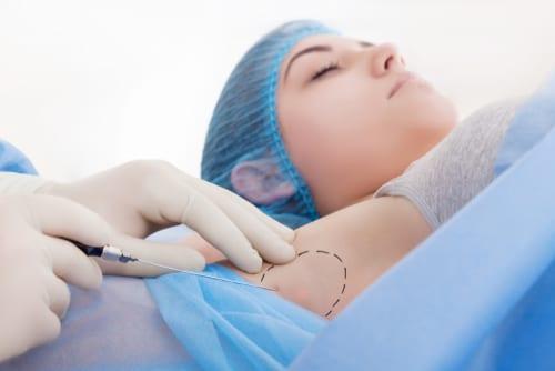 woman having anti sweat armpit mesotherapy-img-blog