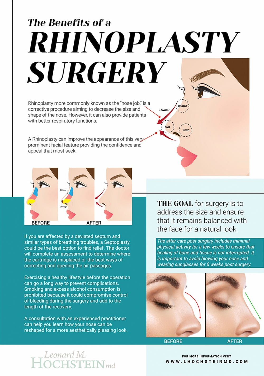 Rhinoplasty Surgery Inforgraphic