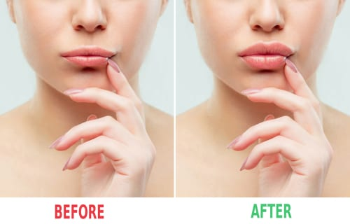before and after lips filler injections-img-blog