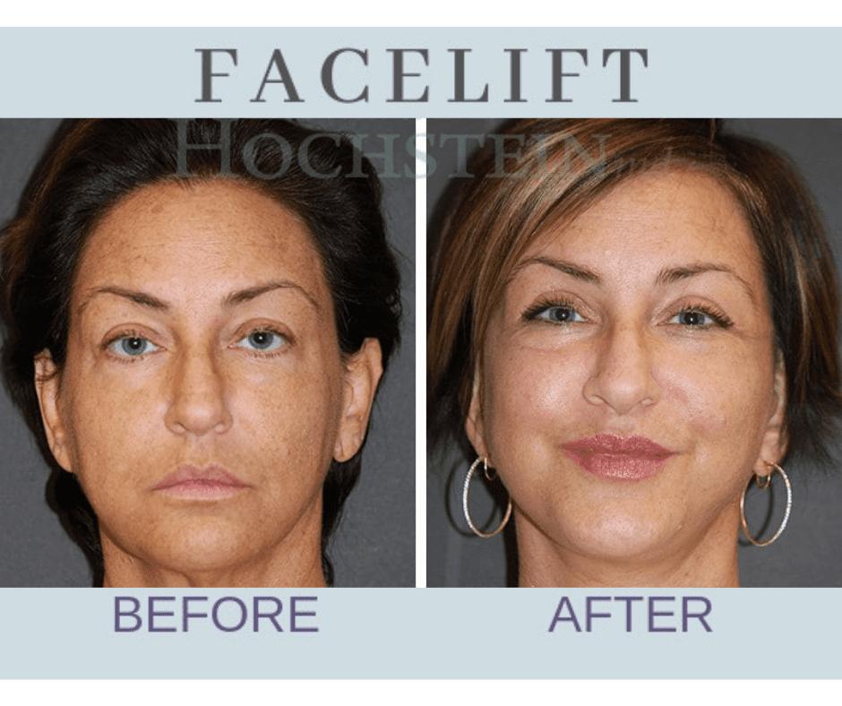 img-blog-face-lift-patient-03BA