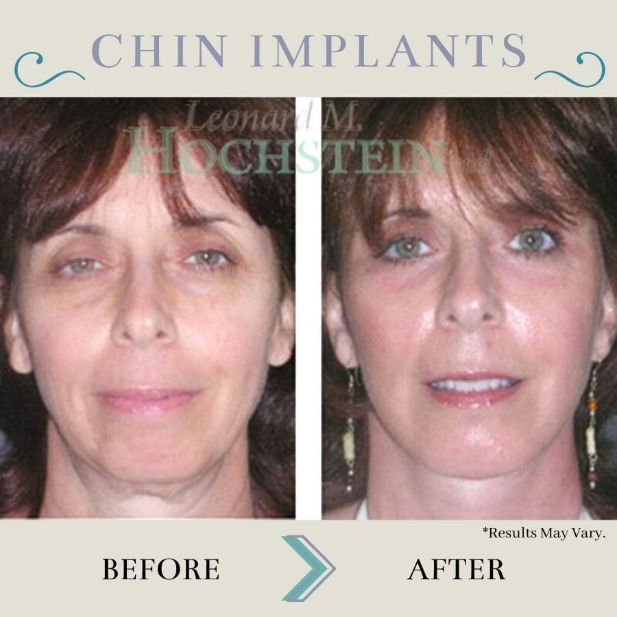 This before-and-after image set shows how chin implants lead to an overall more defined appearance. By shaping and contouring the chin, the rest of the face looks younger and better balanced.