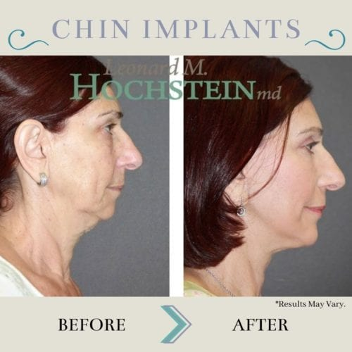 These before-and-after images show the difference chin implants can make in a woman's facial profile. Chin implants can make the chin look fuller and more contoured, balancing other facial features.