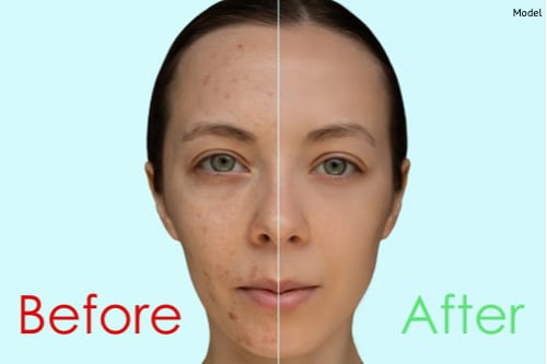A woman before and after a chemical peel treatment.