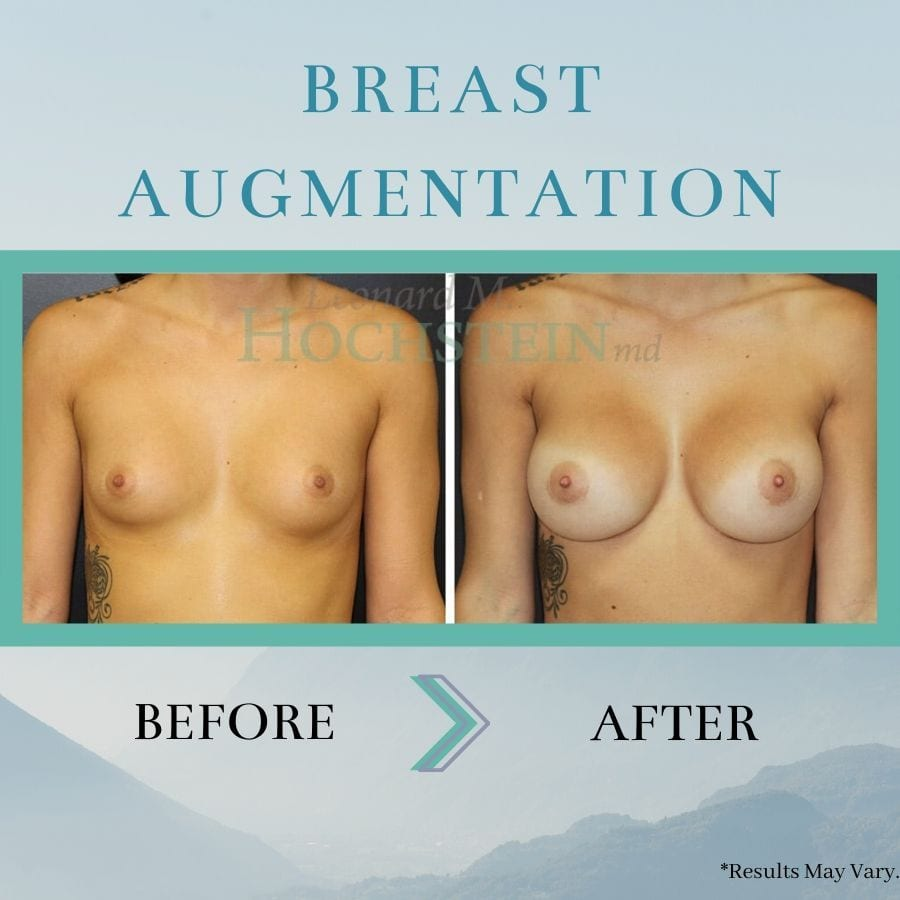 before-and-after-breast-augmentation-breast-aug-02736-17a