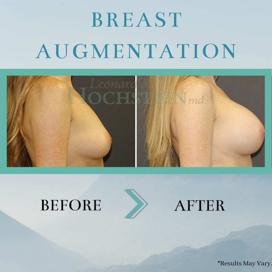 before-and-after-breast-augmentation-breast-aug-p253-b