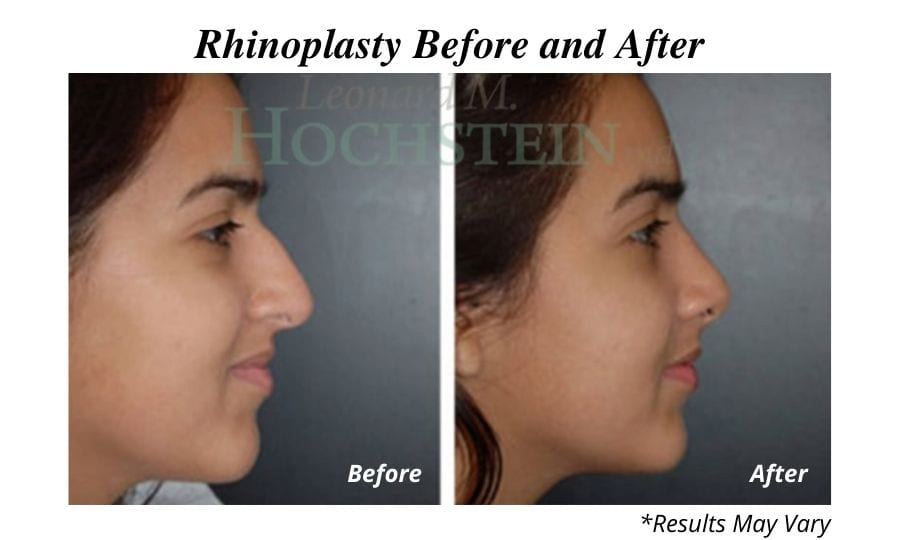 Before and after of a woman's rhinoplasty results
