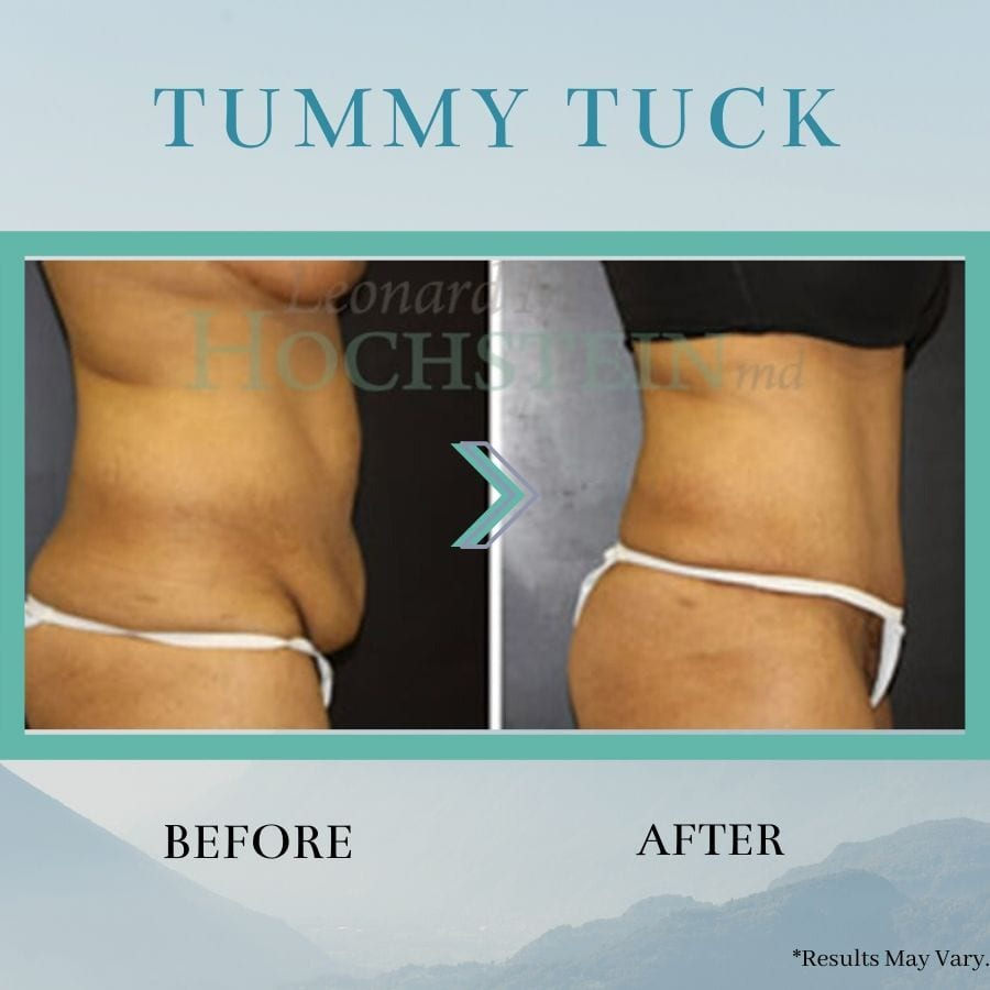 Before and after images of tummy tuck surgery