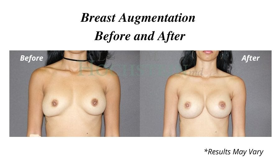 Before and after image of a woman's breast augmentation