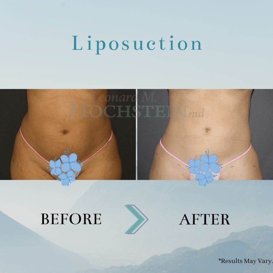Woman who has enhanced the contours of her stomach with liposuction