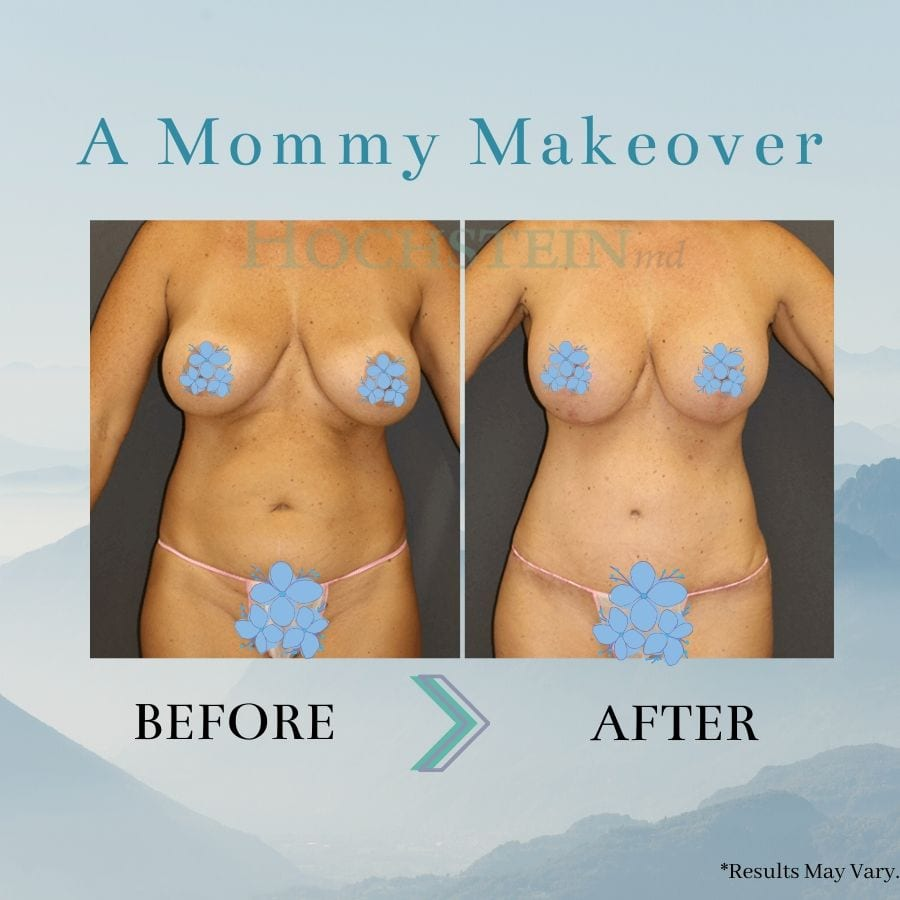Before and after image showing the results of a Mommy Makeover performed in Miami.