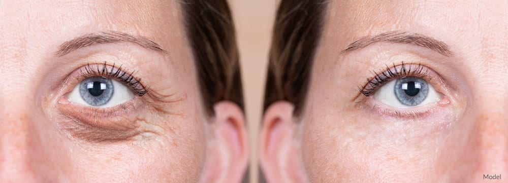 before and after of an eyelid surgery procedure