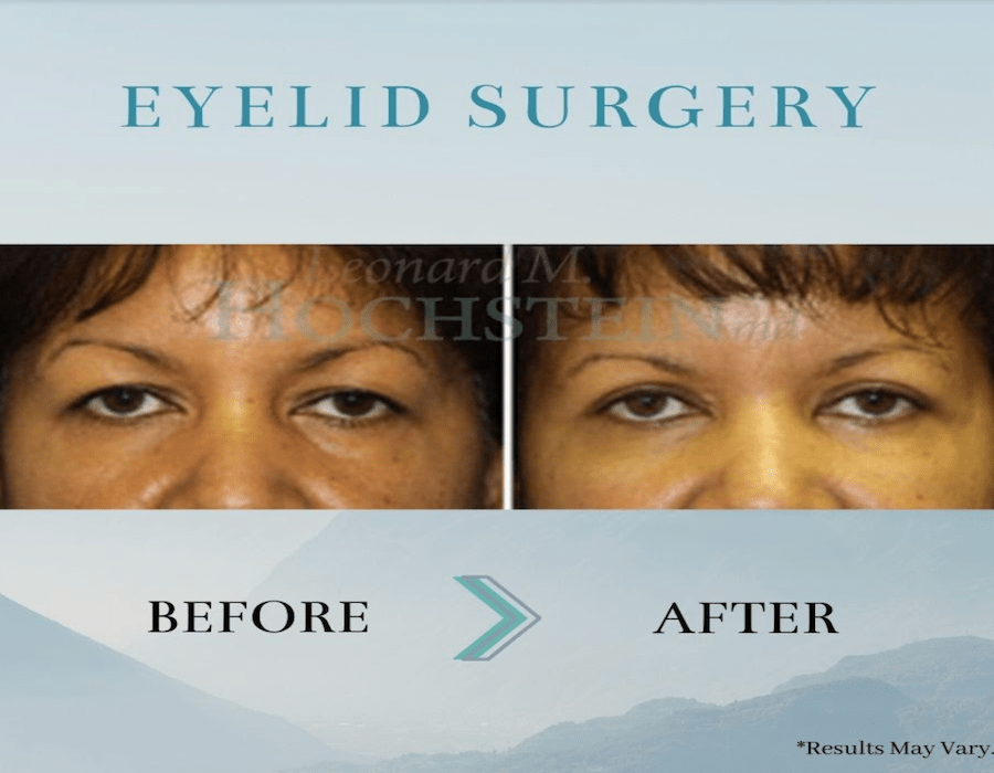 Before and after image showing the results of a eyelid surgery performed in Miami by Dr. Hochstein.