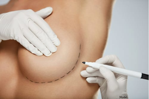 consultation for breast revision