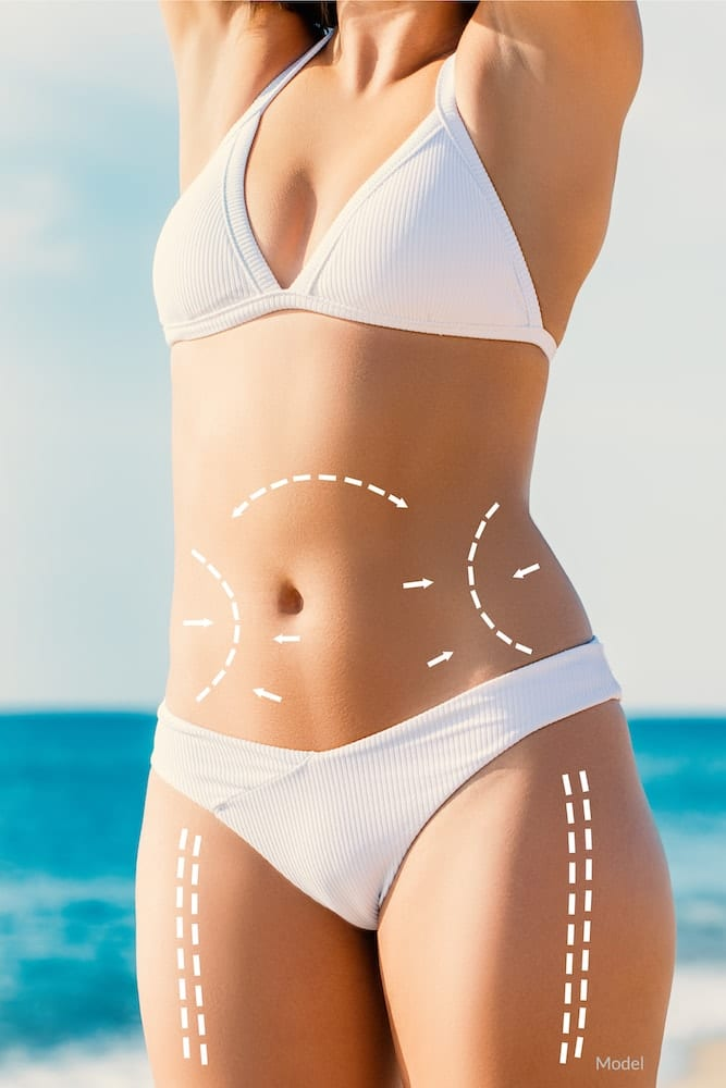 Woman standing on the beach with plastic surgery lines drawn on her midsection.