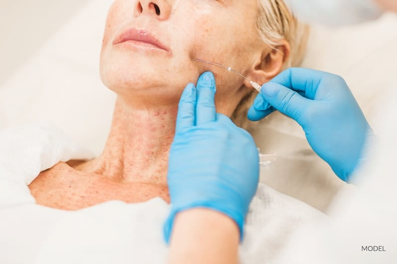 Woman undergoing a thread lift with her plastic surgeon.