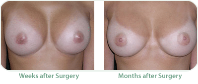 Before eand after Breast augmentation, weeks after surgery, months after surgery