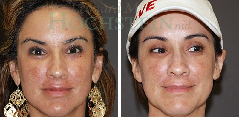 Halo Laser Patient Before and After
