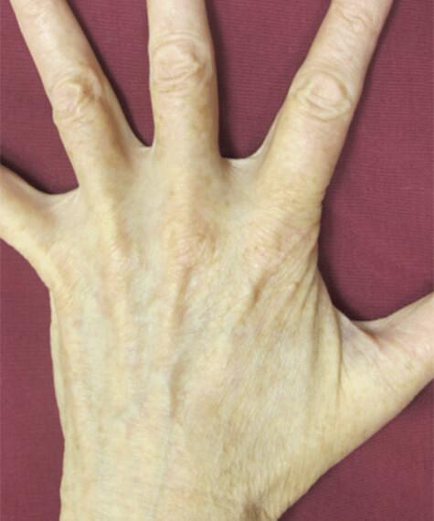Laser Treatments 1 Patient After