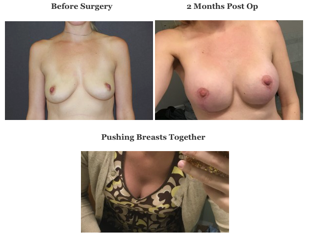 Pre Op and Post Op Photos and Photo of Breasts Pushed Together