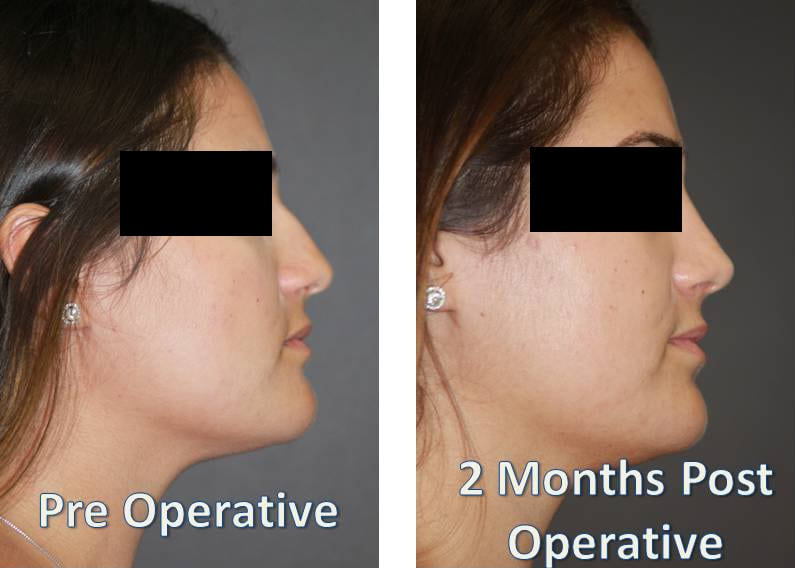Pre operative and 2 months post operative rhinoplasty