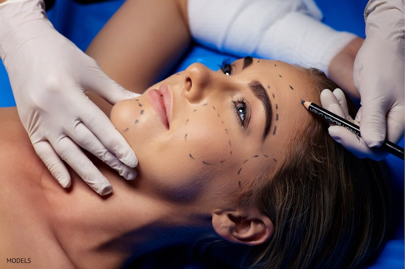 Woman preparing for a facial surgery with surgical lines drawn on face.
