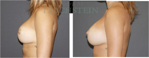 Breast Revision Patient 01 before and after facing left.