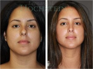 Rhinoplasty Patient 03 before and after facing front.