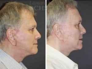 Face Lift Patient 26 before and after facing right.
