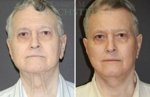 Face Lift Patient 26 before and after facing forward.