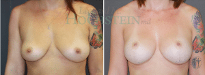 Breast Lift Patient 155 before and after facing right.