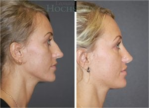 Rhinoplasty Patient 02 before and after facing right.