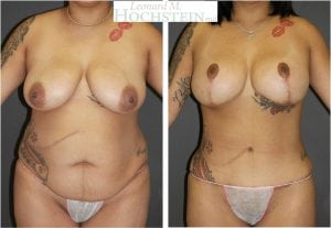 Mommy Makeover Patient 53 before and after facing front.