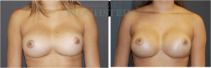 Breast Revision Patient 60 before and after facing forward.