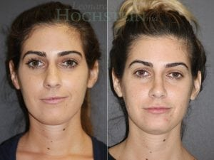 Rhinoplasty Patient 61 before and after facing front.