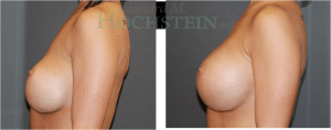 Breast Revision Patient 02 before and after facing left.
