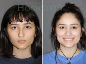 Rhinoplasty Patient 01 before and after facing forward.
