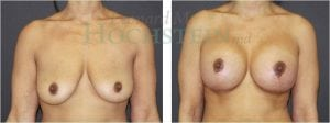 Breast Lift Patient 03 before and after facing front.