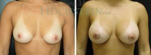 Breast Augmentation Patient 210 before and after facing forward.