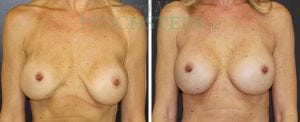 Breast Augmentation Patient 218 before and after facing forward.