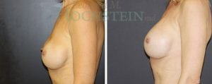 Breast Augmentation Patient 218 before and after facing left.