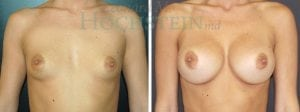 Breast Augmentation Patient 219 before and after facing forward.