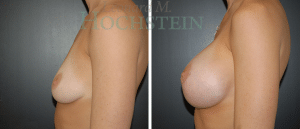 Breast Augmentation Patient 202 before and after facing left.